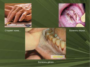 Стареет кожа… Болезнь языка… Болезнь дёсен…