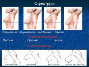 Форма груди По степени развития Шарообразная Конусообразная Чашеобразная Обви