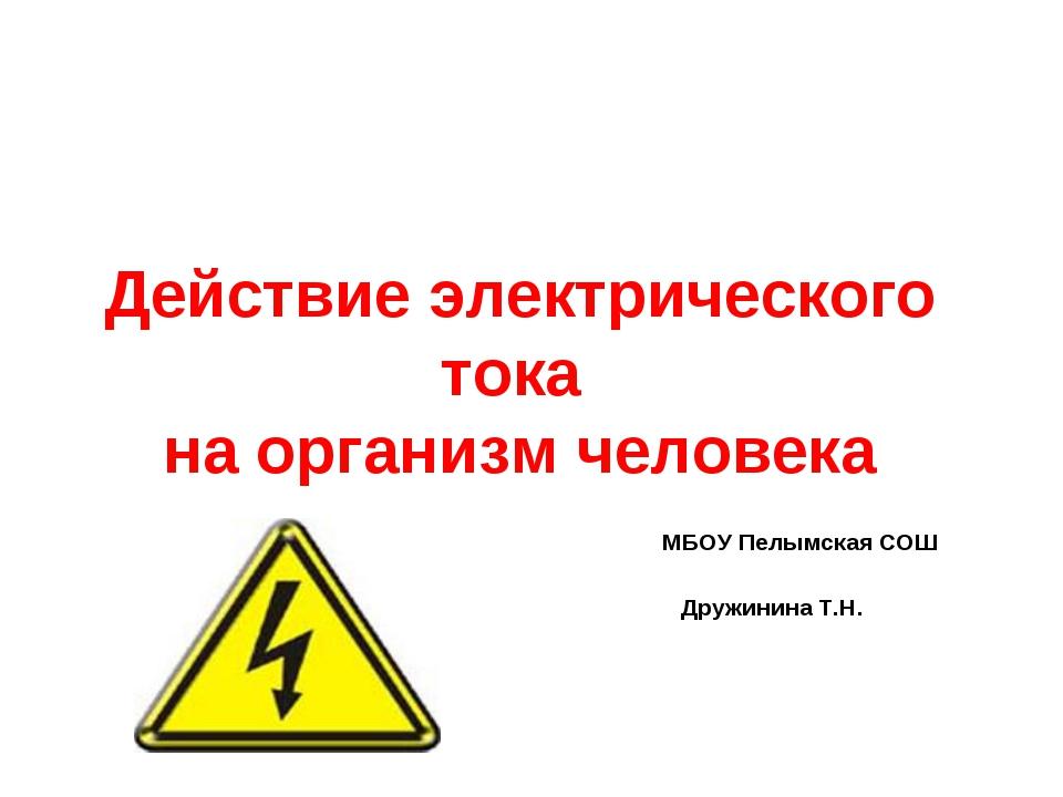 Действие электрического тока на организм человека МБОУ Пелымская СОШ Дружинин...