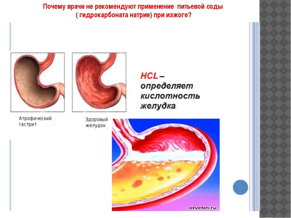 Почему врачи не рекомендуют применение питьевой соды ( гидрокарбоната натрия...