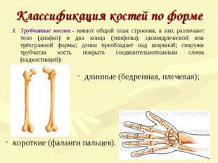 Классификация костей по форме Трубчатые кости- имеют общий план строения, в