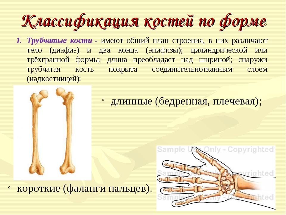 Классификация костей по форме Трубчатые кости- имеют общий план строения, в...