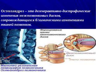 Остеохондроз – это дегенеравтивно-дистрофические изменения межпозвонковых дис