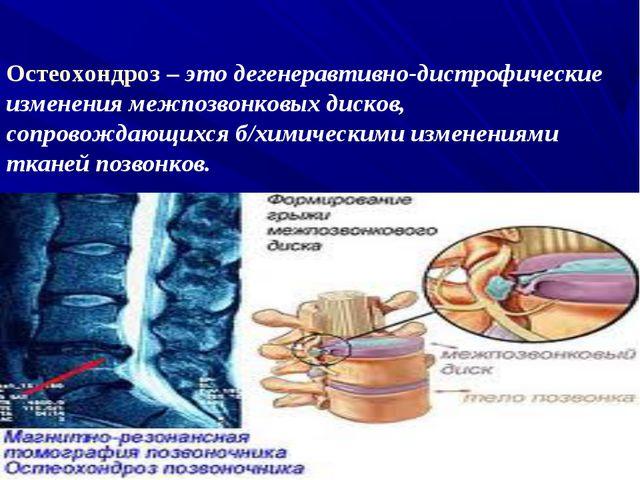 Остеохондроз – это дегенеравтивно-дистрофические изменения межпозвонковых дис...