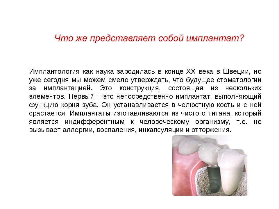 Имплантология как наука зародилась в конце ХХ века в Швеции, но уже сегодня м...