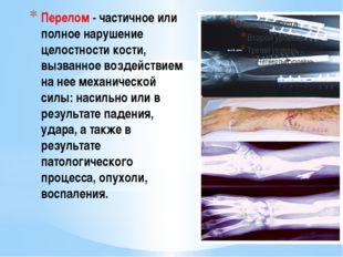 Перелом - частичное или полное нарушение целостности кости, вызванное воздейс