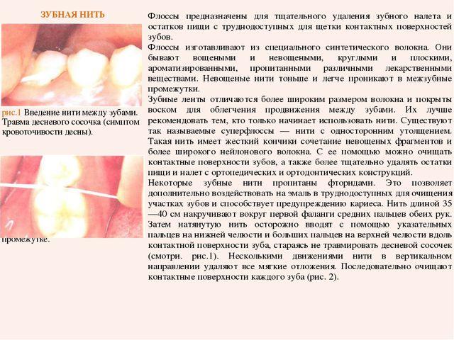 ЗУБНАЯ НИТЬ рис.1 Введение нити между зубами. Травма десневого сосочка (симп...