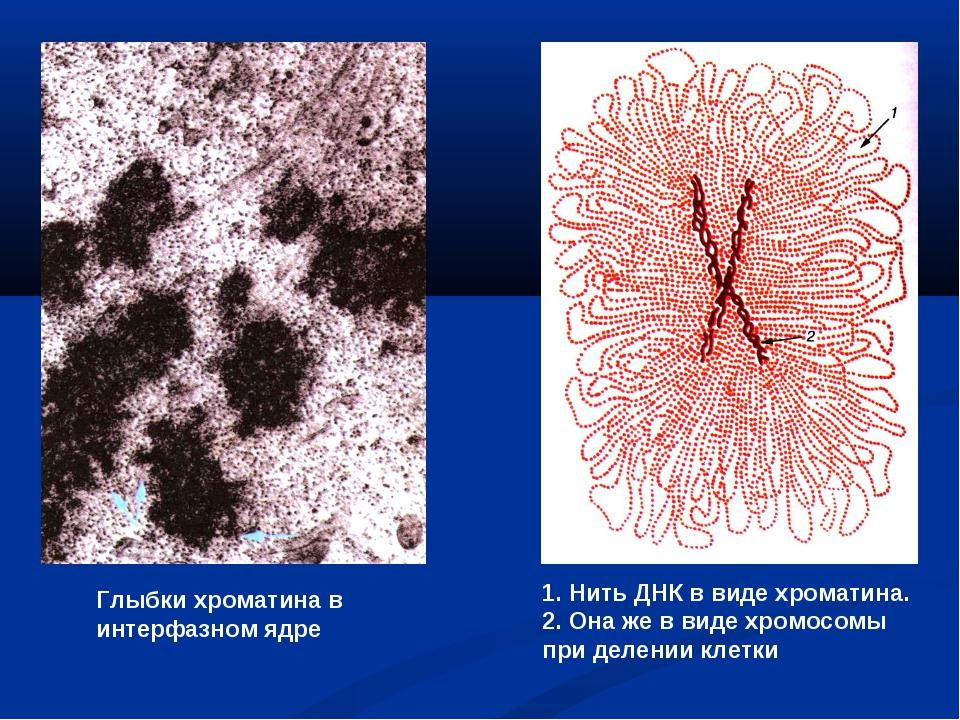 Глыбки хроматина в интерфазном ядре 1. Нить ДНК в виде хроматина. 2. Она же в...