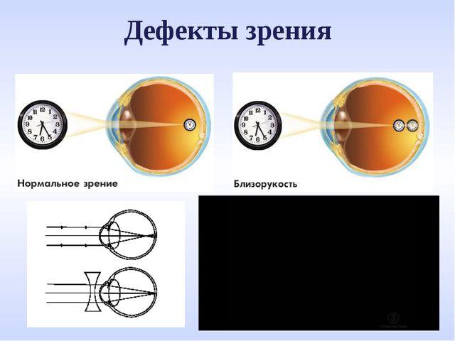 Дефекты зрения