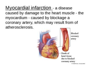 Myocardial infarction - a disease caused by damage to the heart muscle - the