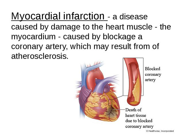 Myocardial infarction - a disease caused by damage to the heart muscle - the...