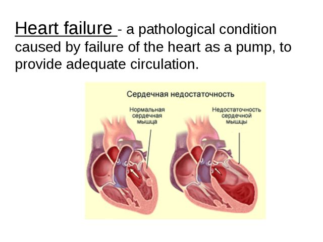Heart failure - a pathological condition caused by failure of the heart as a...