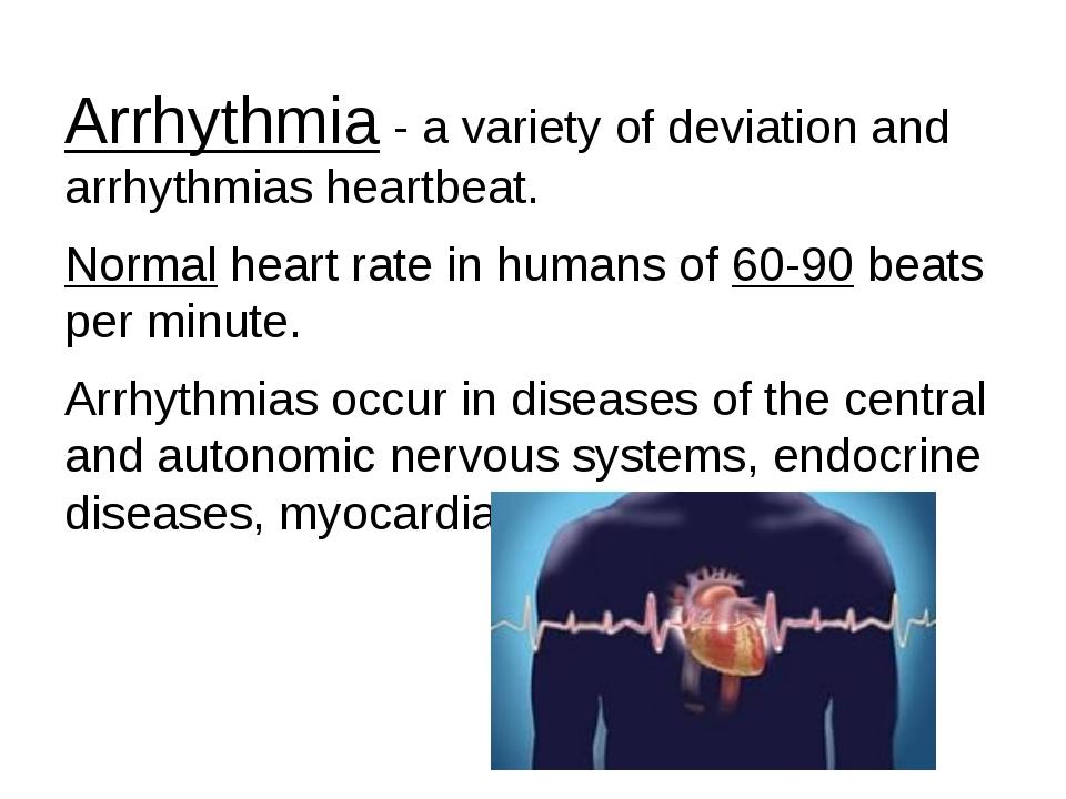Arrhythmia - a variety of deviation and arrhythmias heartbeat. Normal heart r...