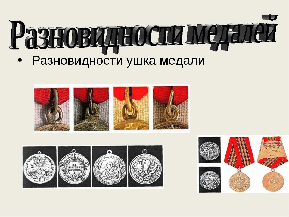 . Разновидности ушка медали