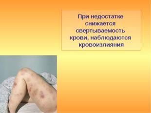 При недостатке снижается свертываемость крови, наблюдаются кровоизлияния