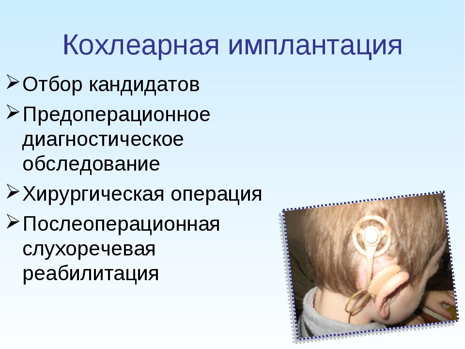 Кохлеарная имплантация Отбор кандидатов Предоперационное диагностическое обсл...