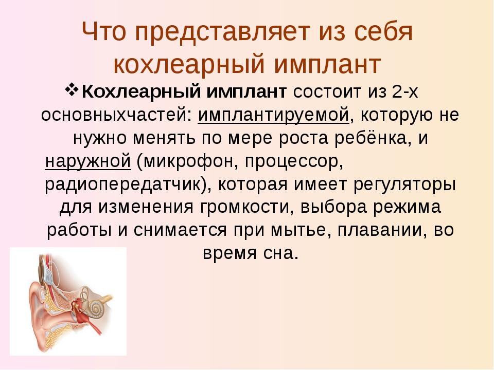 Что представляет из себя кохлеарный имплант Кохлеарный имплант состоит из 2-х...