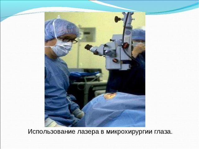 Использование лазера в микрохирургии глаза.