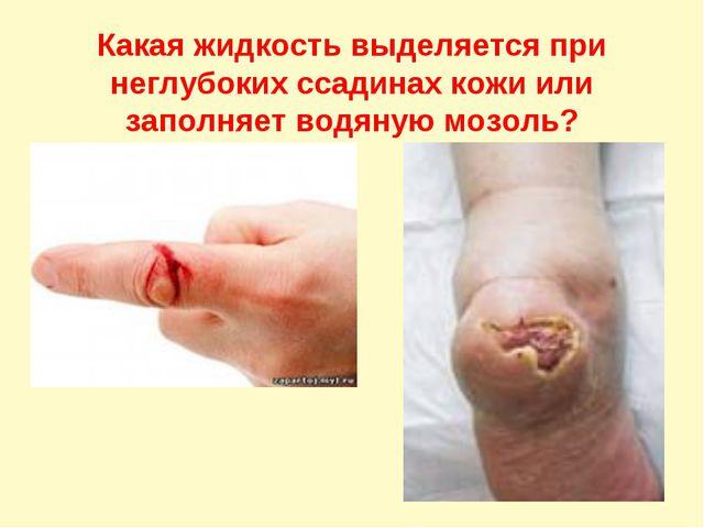 Какая жидкость выделяется при неглубоких ссадинах кожи или заполняет водяную...