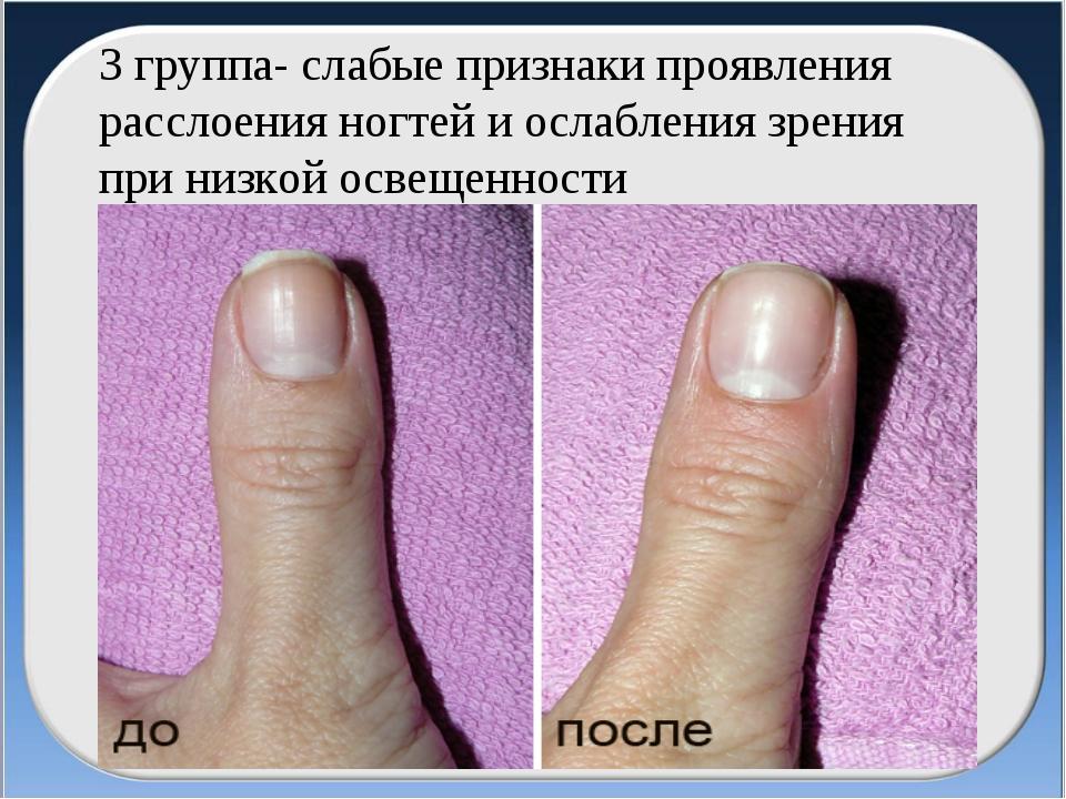 3 группа- слабые признаки проявления расслоения ногтей и ослабления зрения пр...