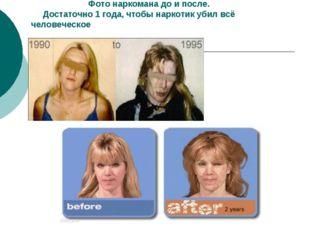 Фото наркомана до и после. Достаточно 1 года, чтобы наркотик убил всё челове
