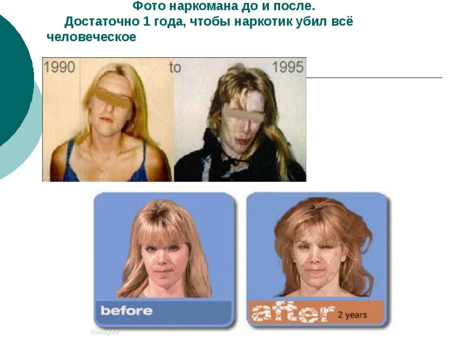 Фото наркомана до и после. Достаточно 1 года, чтобы наркотик убил всё челове...