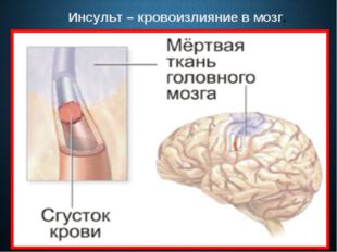 Инсульт – кровоизлияние в мозг.