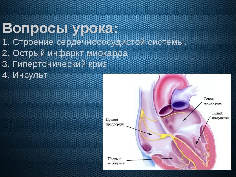 Вопросы урока: 1. Строение сердечнососудистой системы. 2. Острый инфаркт мио...