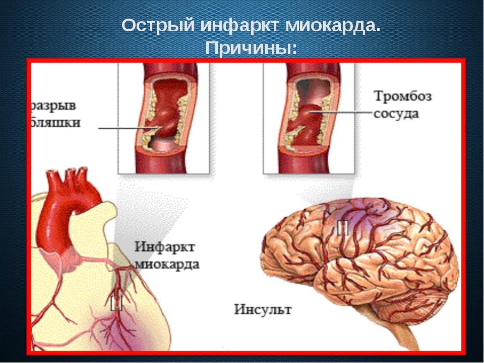 Острый инфаркт миокарда. Причины:
