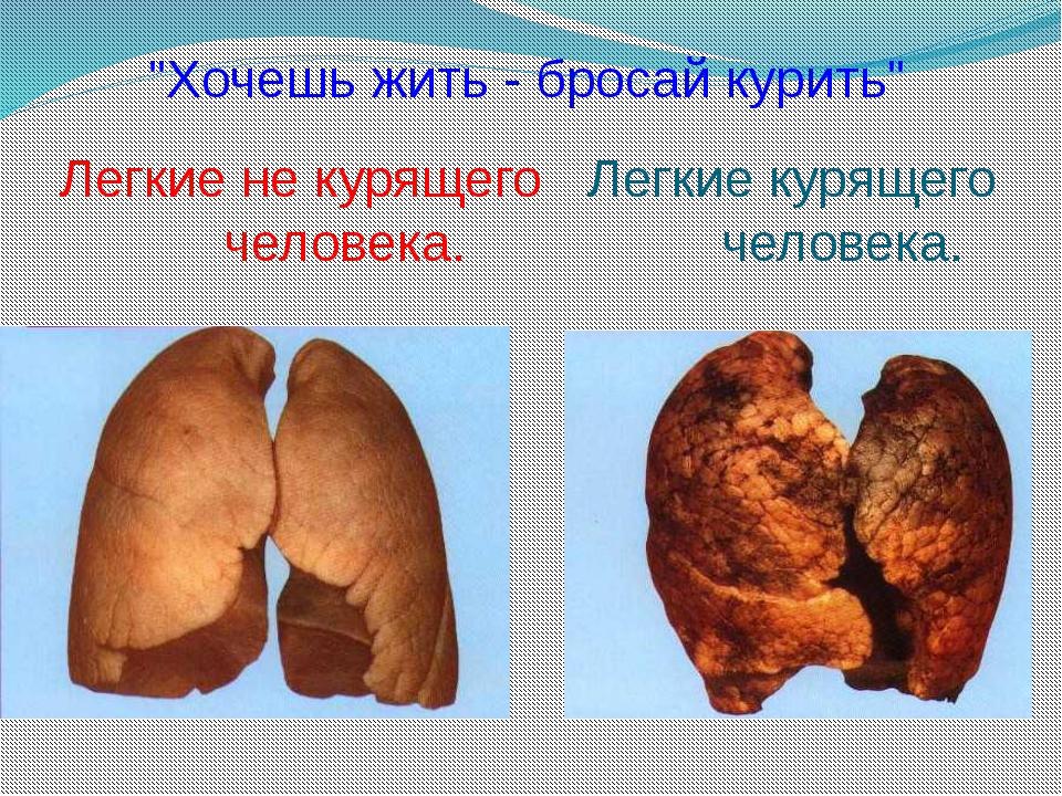 """Легкие не курящего человека. Легкие курящего человека. """"Хочешь жить - бросай..."""