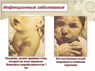 Младенцу, делают прививку оспы, которую он легко переносит. Иммунитет вырабат