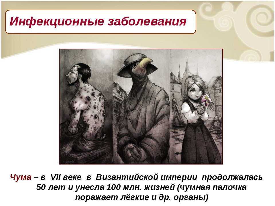 Чума – в VII веке в Византийской империи продолжалась 50 лет и унесла 100 млн...