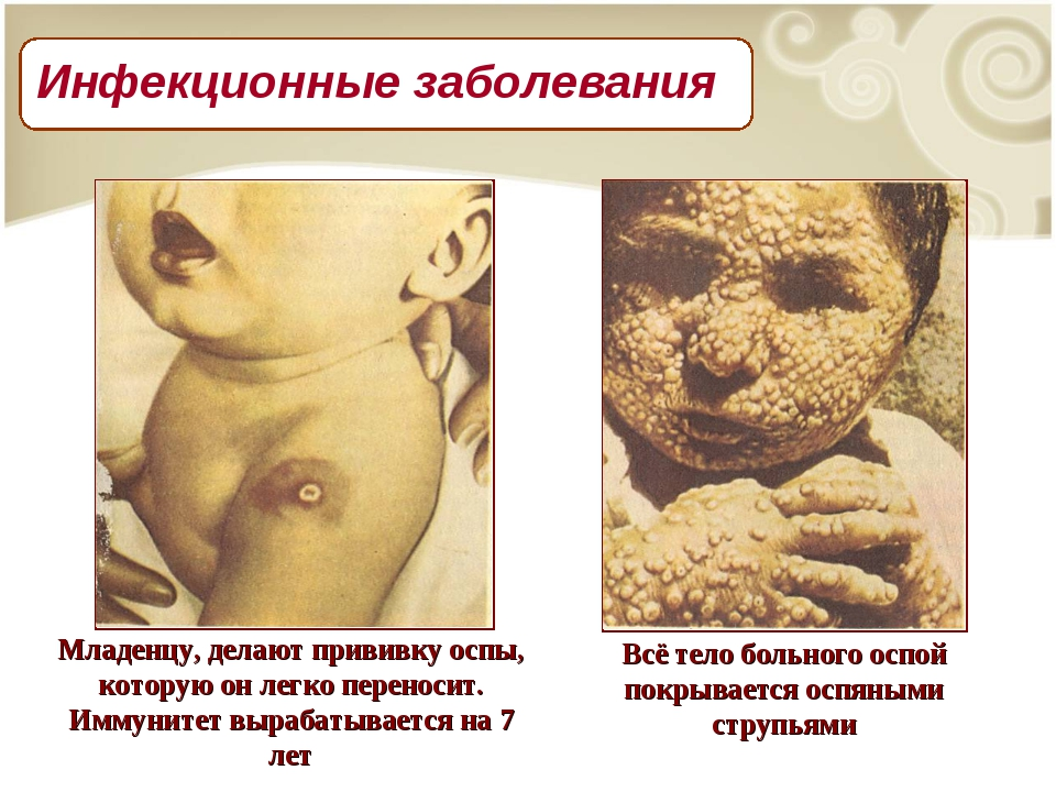 Младенцу, делают прививку оспы, которую он легко переносит. Иммунитет вырабат...
