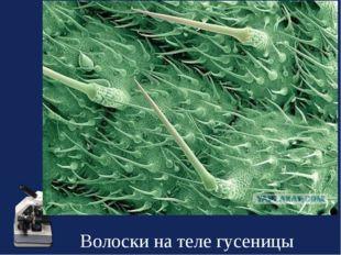 Волоски на теле гусеницы