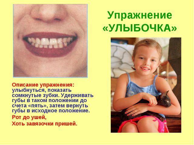 Упражнение «УЛЫБОЧКА» Описание упражнения: улыбнуться, показать сомкнутые зуб...