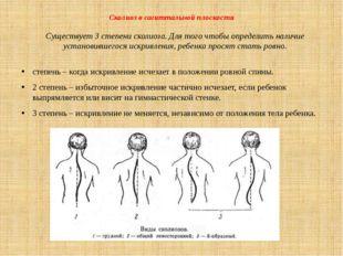 Сколиоз в сагиттальной плоскости Существует 3 степени сколиоза. Для того чтоб