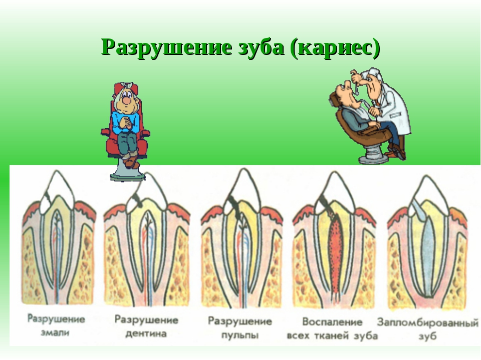 Разрушение зуба (кариес)