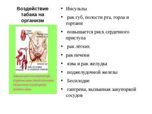 Воздействие табака на организм Инсульты рак губ, полости рта, горла и гортани