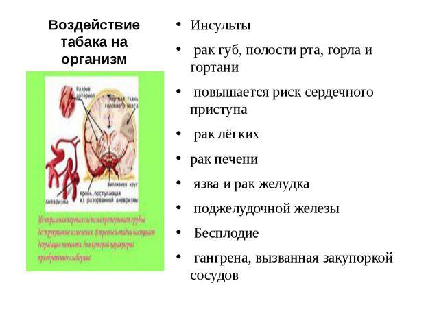 Воздействие табака на организм Инсульты рак губ, полости рта, горла и гортани...