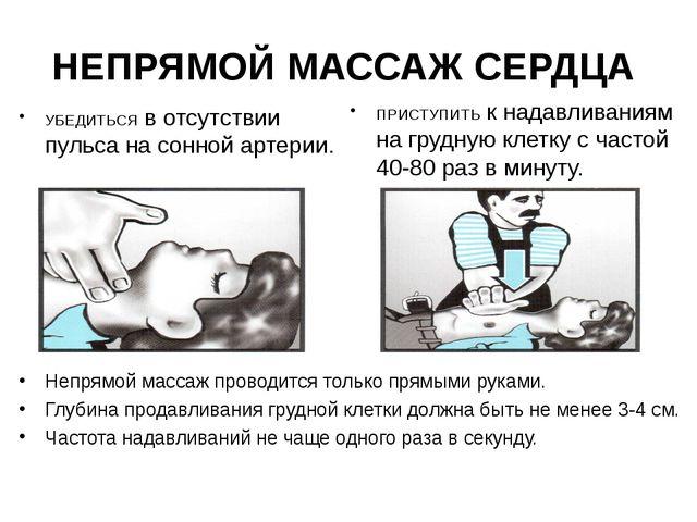 НЕПРЯМОЙ МАССАЖ СЕРДЦА УБЕДИТЬСЯ в отсутствии пульса на сонной артерии. ПРИСТ...