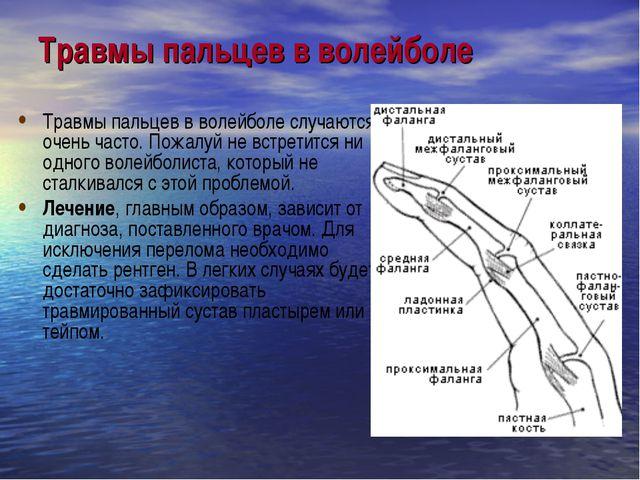 Травмы пальцев в волейболе Травмы пальцев в волейболе случаются очень часто....