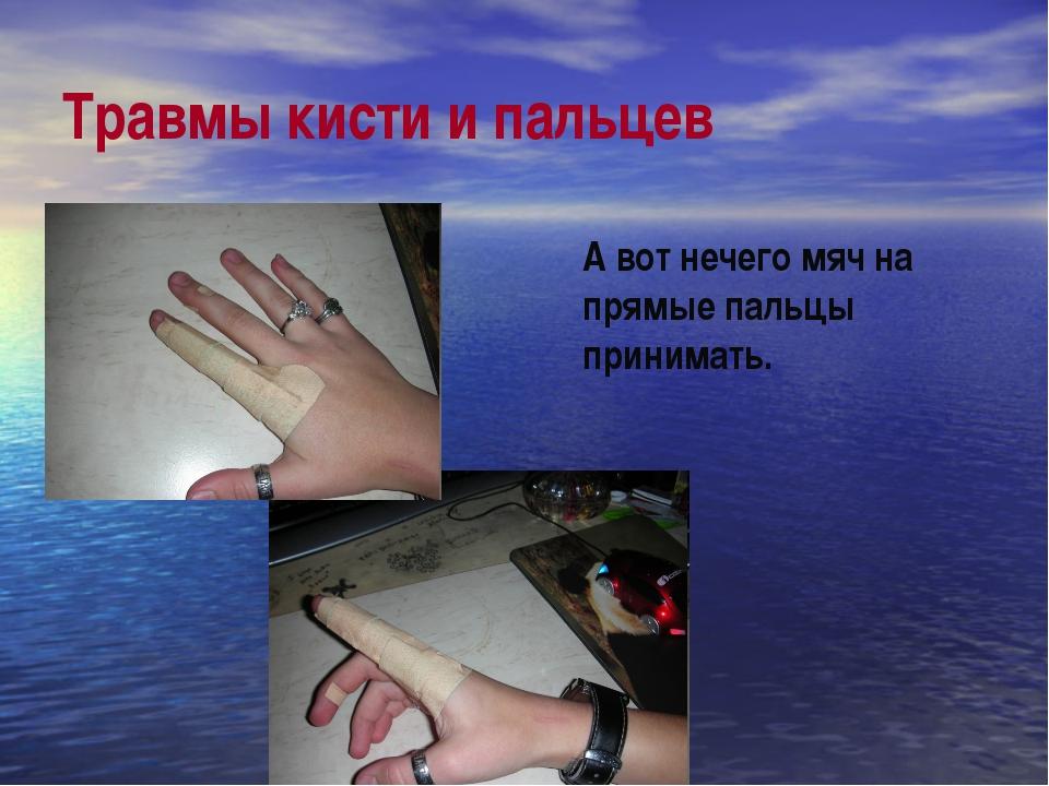 Травмы кисти и пальцев А вот нечего мяч на прямые пальцы принимать.