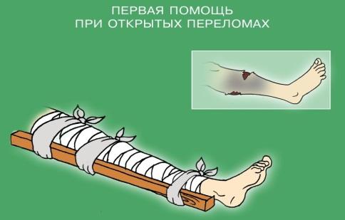 Первая медицинская помощь при открытых переломах