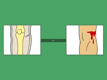 Признаки ранений