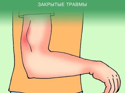 Закрытые травмы