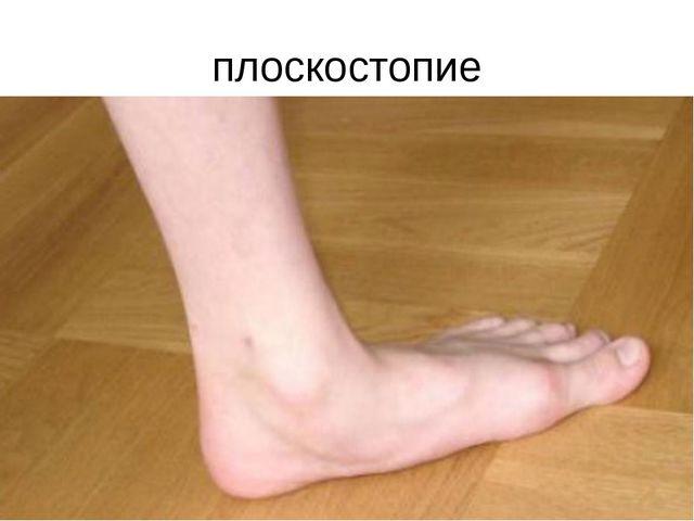 плоскостопие