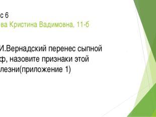 Вопрос 6 Бушуева Кристина Вадимовна, 11-б В.И.Вернадский перенес сыпной тиф,