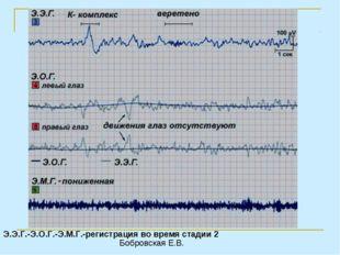 Э.Э.Г.-Э.О.Г.-Э.М.Г.-регистрация во время стадии 2 Бобровская Е.В.