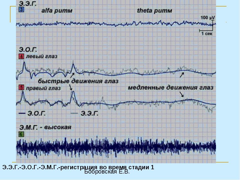 Э.Э.Г.-Э.О.Г.-Э.М.Г.-регистрация во время стадии 1 Бобровская Е.В.