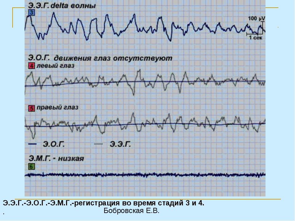 Э.Э.Г.-Э.О.Г.-Э.М.Г.-регистрация во время стадий 3 и 4. . Бобровская Е.В.